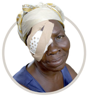 Jeanne with patch over her eye after cataract surgery