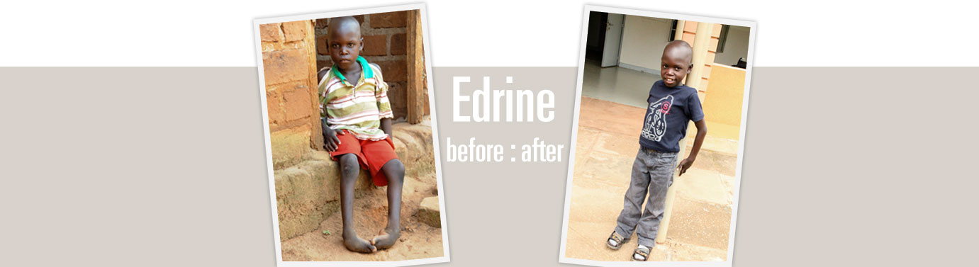 Edrine before and after clubfoot correction