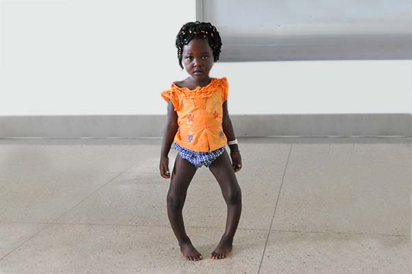 Benita standing in hospital with bowed legs