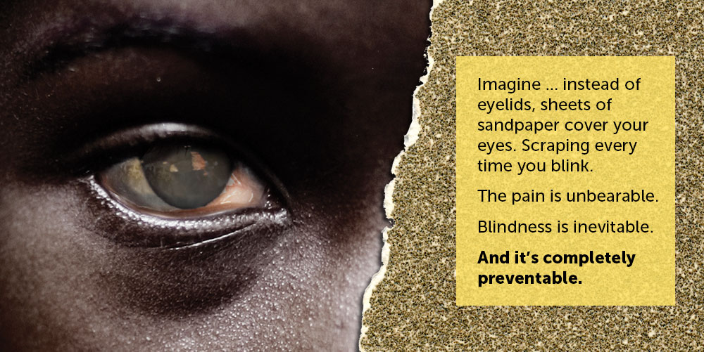 Imagine ... instead of eyelids, sheets of sandpaper cover your eyes. Scraping every time you blink. The pain is unbearable. Blindness is inevitable. And it's completely preventable.
