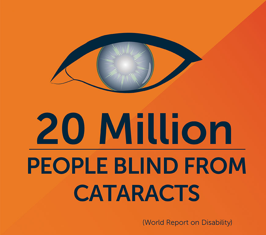 20 Million people blind from cataract