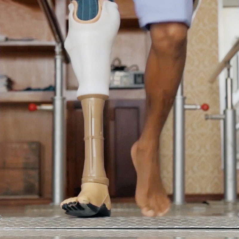 Patient walking with a 3d printed prosthetic limb