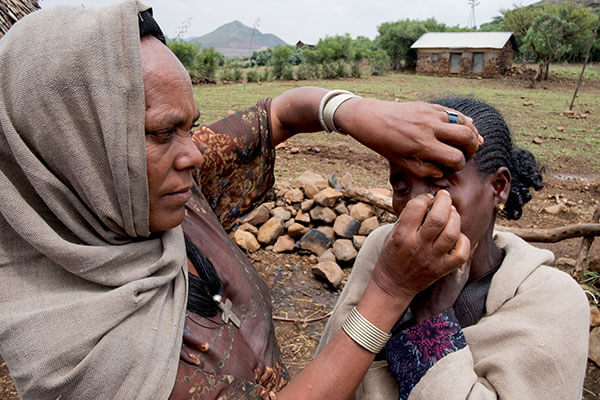Tsehainesh demonstrates how she pulls out her sister's (Dinknesh) eyelashes using local tweezers in Amhara Region, Ethiopia, on May 17, 2017