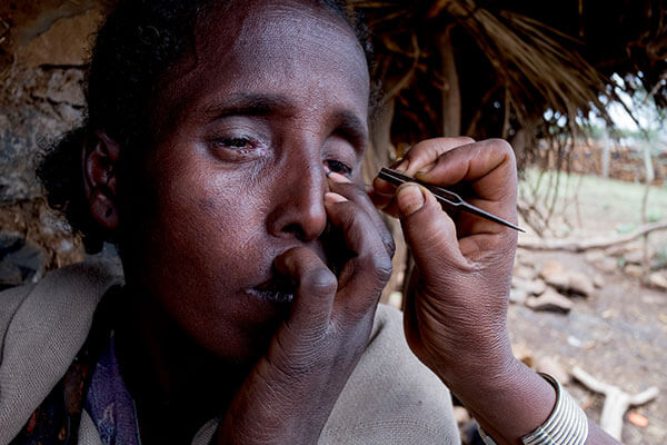 Tsehainesh demonstrates how she pulls out her sister's (Dinknesh) eyelashes using local tweezers
