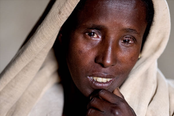 Dinknesh, days after her trichiasis surgery in her left eye in Amhara Region, Ethiopia, on May 20, 2017