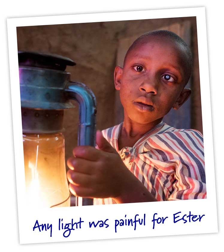 Any light was painful for Ester.